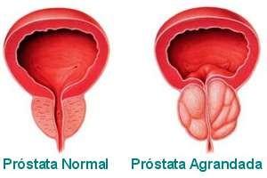 alimentacion problemas prostata