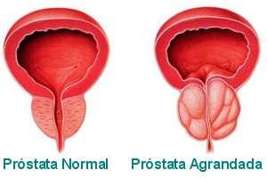 Adenoma de pròstata